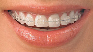 clear-orthodontic-braces-1366x768
