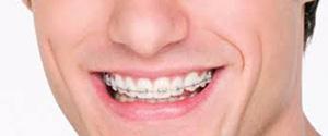 orthodontics_banner3-958x462